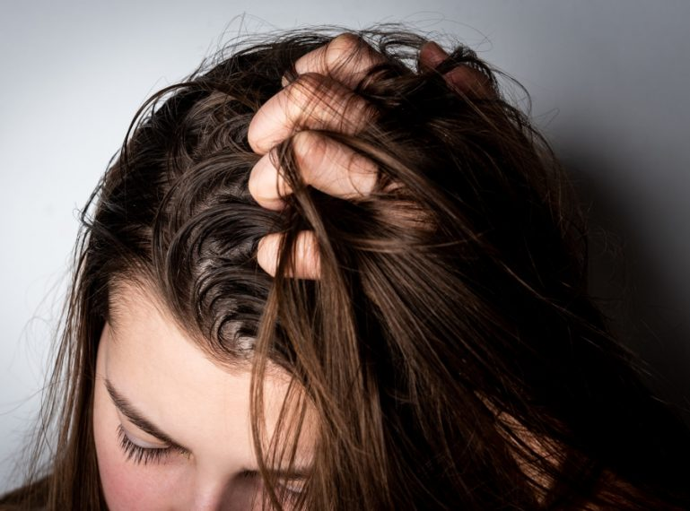 My 4 Infallible Remedies for Oily Hair